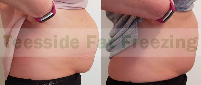Abdomen before and after 3 weeks single treatment side 2