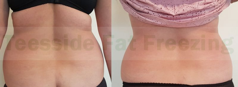 Flanks before and 7 weeks after cryolipolysis