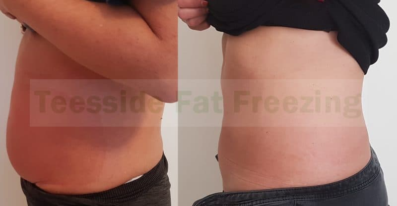 Fat Freezing to abdomen before and after 9 weeks left side