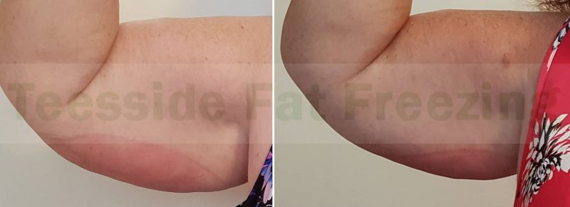 Before and After Upper Arms