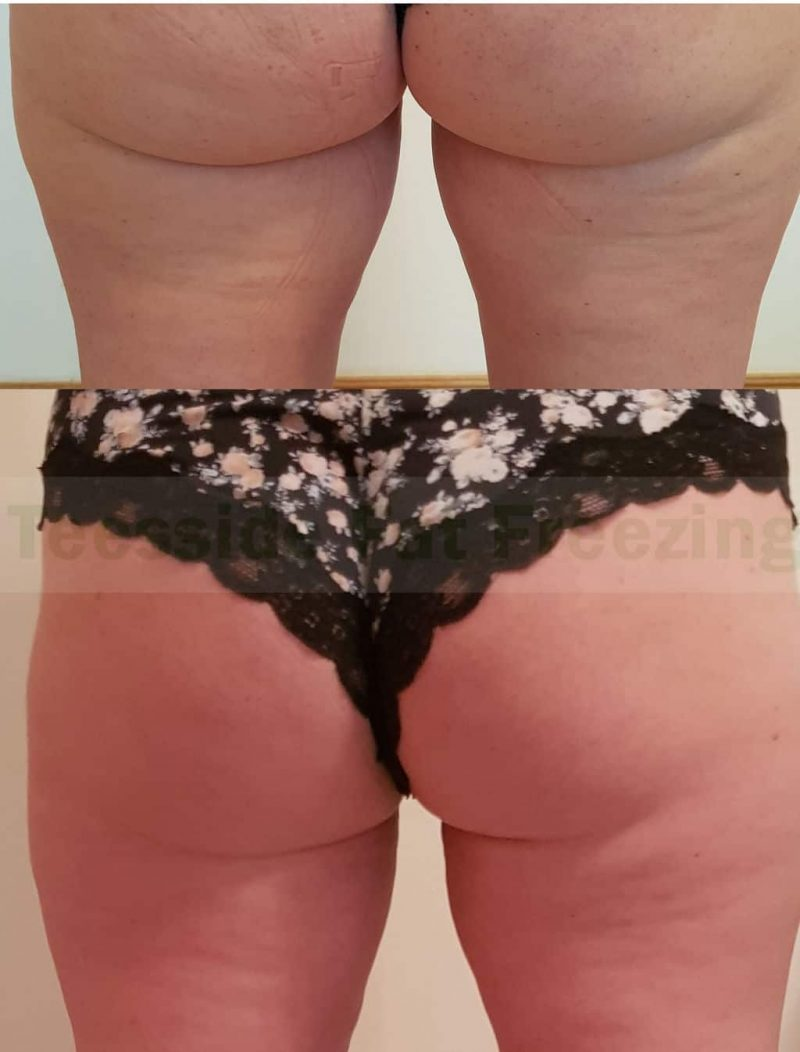 Inner thighs before and after fat freezing