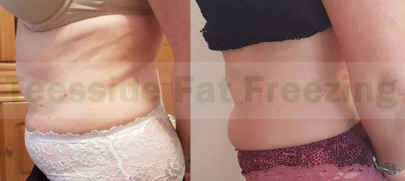 Tummy and waist before and after