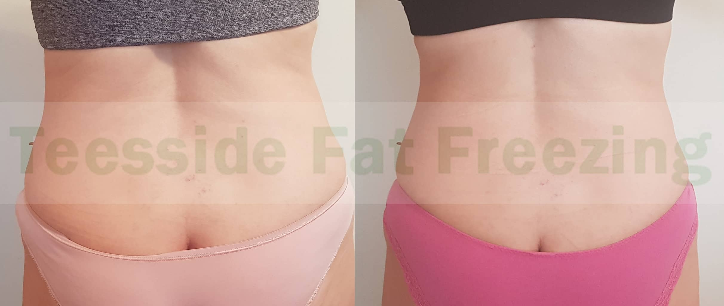Flanks 5 weeks before and after fat freezing