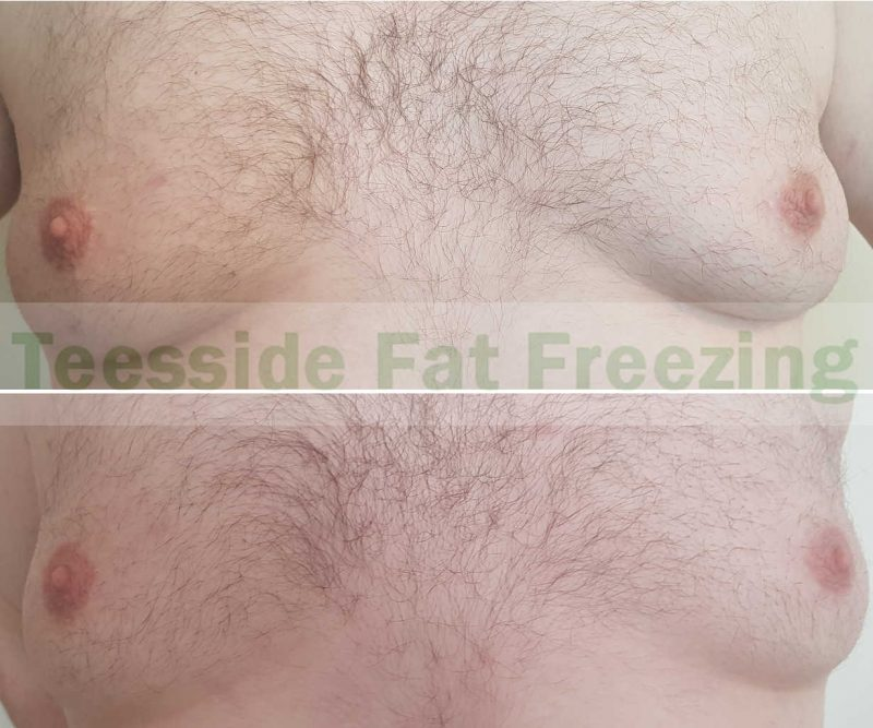 Moobs before and after cryolipolysis