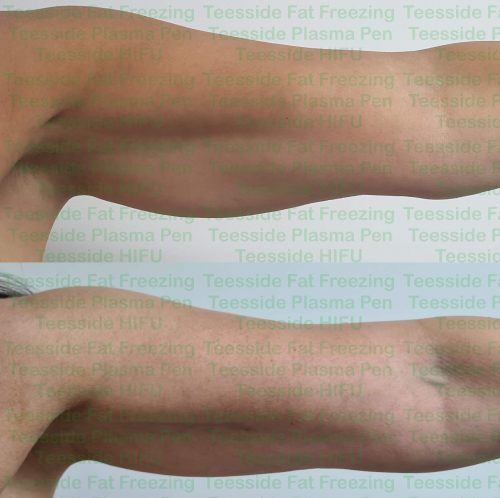 arm before and after fat freezing